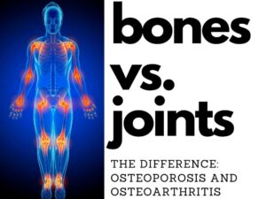 Osteoporosis and Osteoarthritis